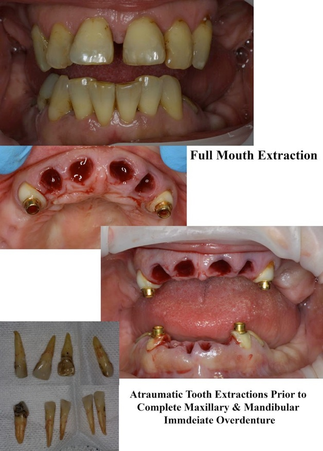 Oral Surgery Wisdom Tooth Extraction  Ef Bf Bc